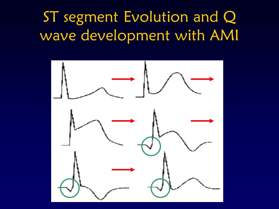 ST segment Evolution and Q wave development with AMI A
