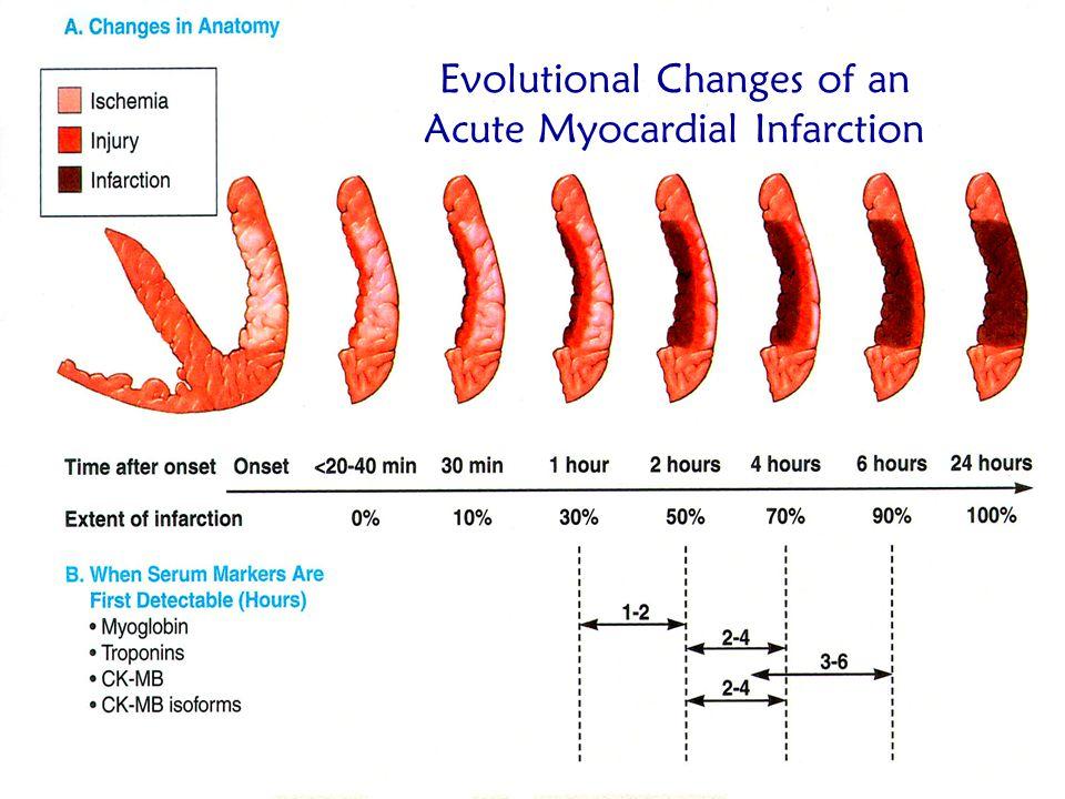 Evolutional Changes of an Acute Myocardial Infarction