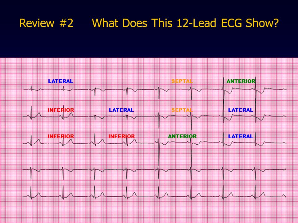 Review #2 What Does This 12-Lead ECG Show? LATERALSEPTALANTERIOR INFERIORLATERALSEPTALLATERAL INFERIOR ANTERIORLATERAL ANTERIOR LATERAL ANTERIORLATERA