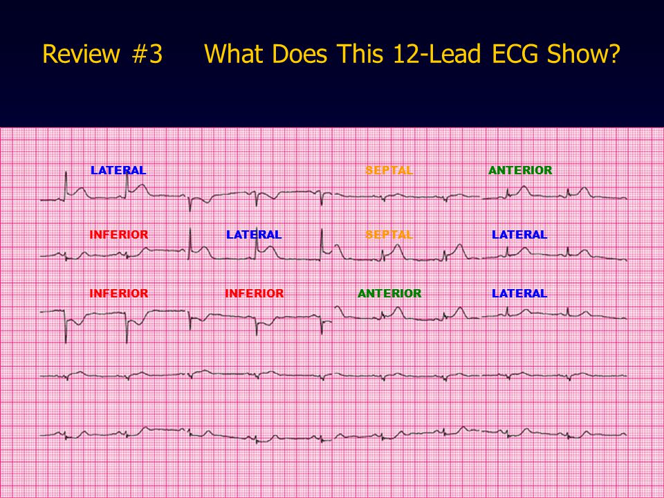 Review #3 What Does This 12-Lead ECG Show? LATERALSEPTALANTERIOR INFERIORLATERALSEPTALLATERAL INFERIOR ANTERIORLATERAL ANTERIOR LATERAL ANTERIORLATERA