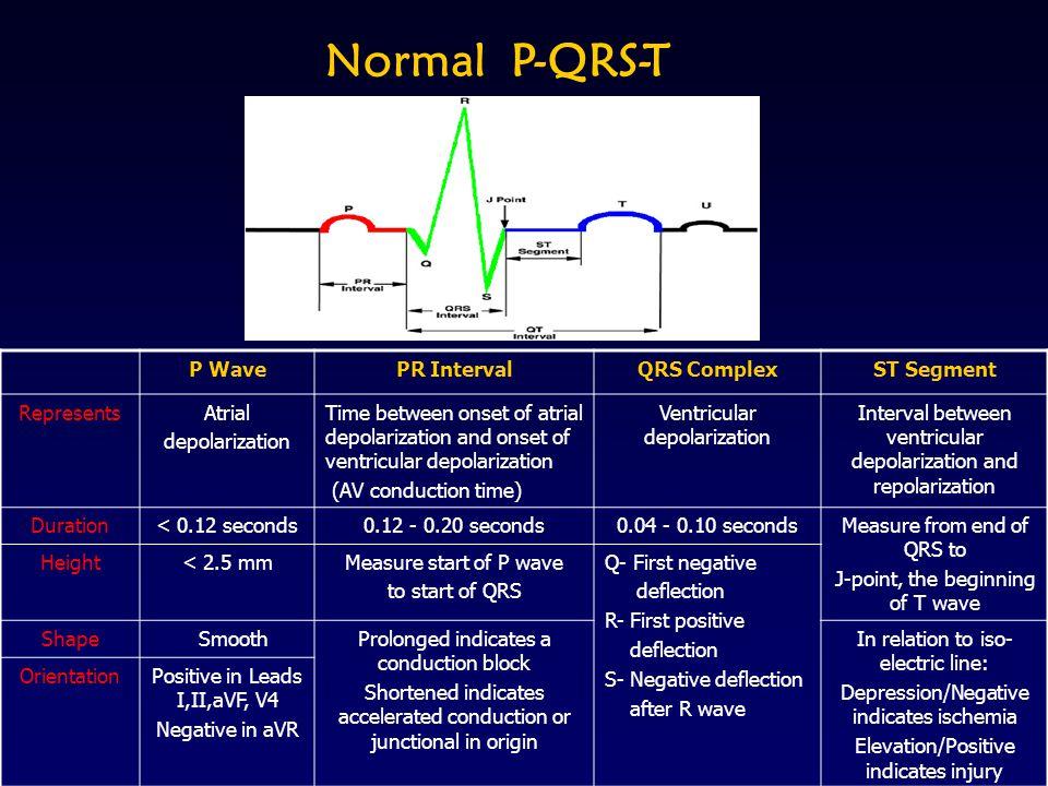 Normal P-QRS-T P WavePR IntervalQRS ComplexST Segment RepresentsAtrial depolarization Time between onset of atrial depolarization and onset of ventric