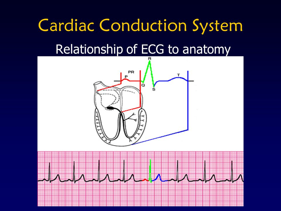 ST Elevation = Current Injury Depicts current myocardial injury Measure J-point to beginning of ventricular repolarization May be elevated >1mm in limb leads and >2mm in precordial leads Will see reciprocal ST depression in other leads
