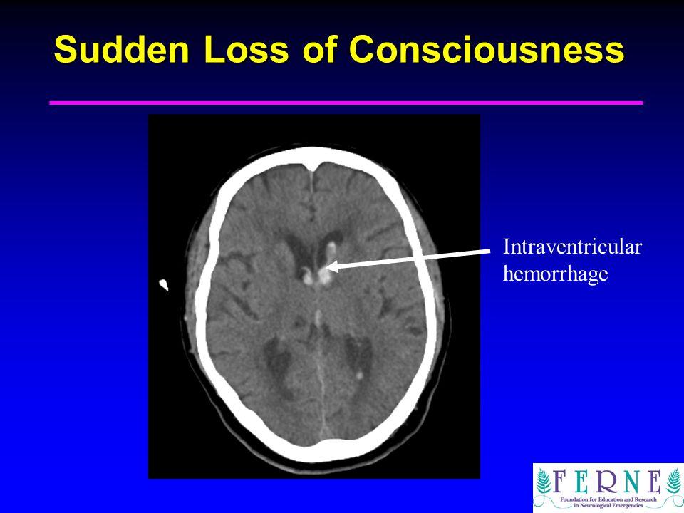 Sudden Loss of Consciousness Intraventricular hemorrhage