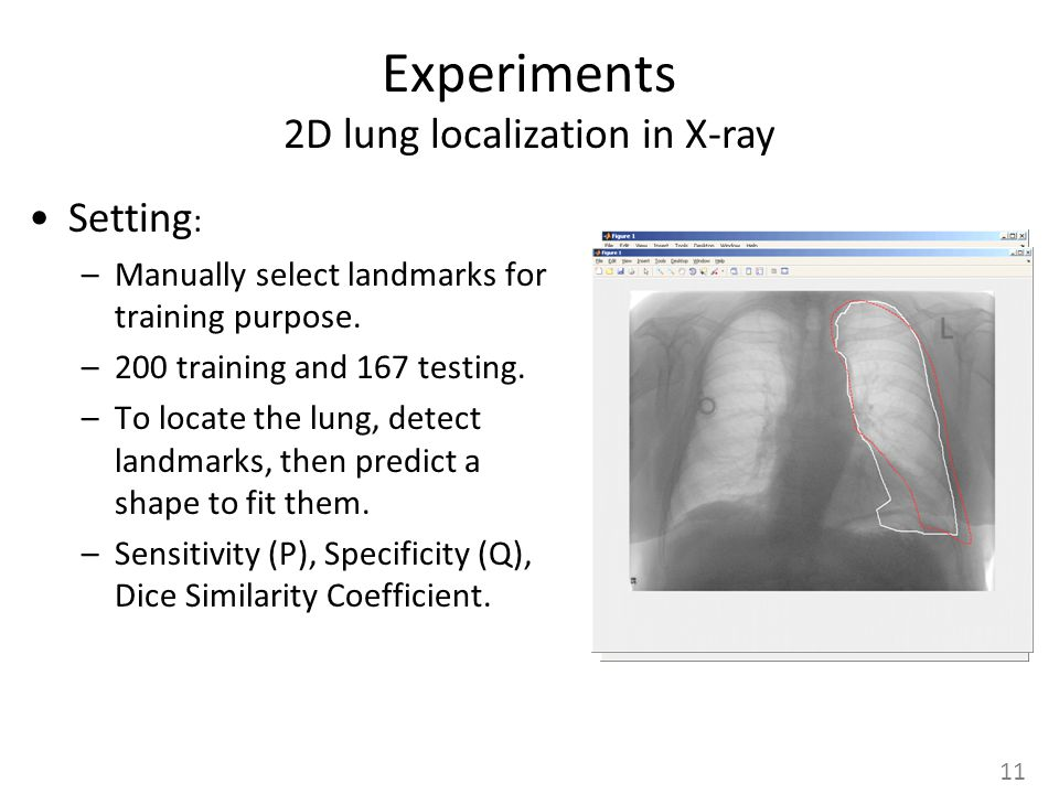 Experiments 2D lung localization in X-ray Setting : –Manually select landmarks for training purpose.