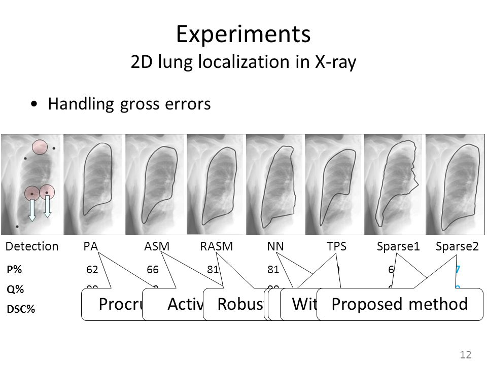 Experiments 2D lung localization in X-ray Handling gross errors Detection PA ASM RASM NN TPS Sparse1 Sparse2 Procrustes analysis Active Shape Model Robust ASMNearest Neighbors Thin-plate-spline Without modeling e 12 Proposed method