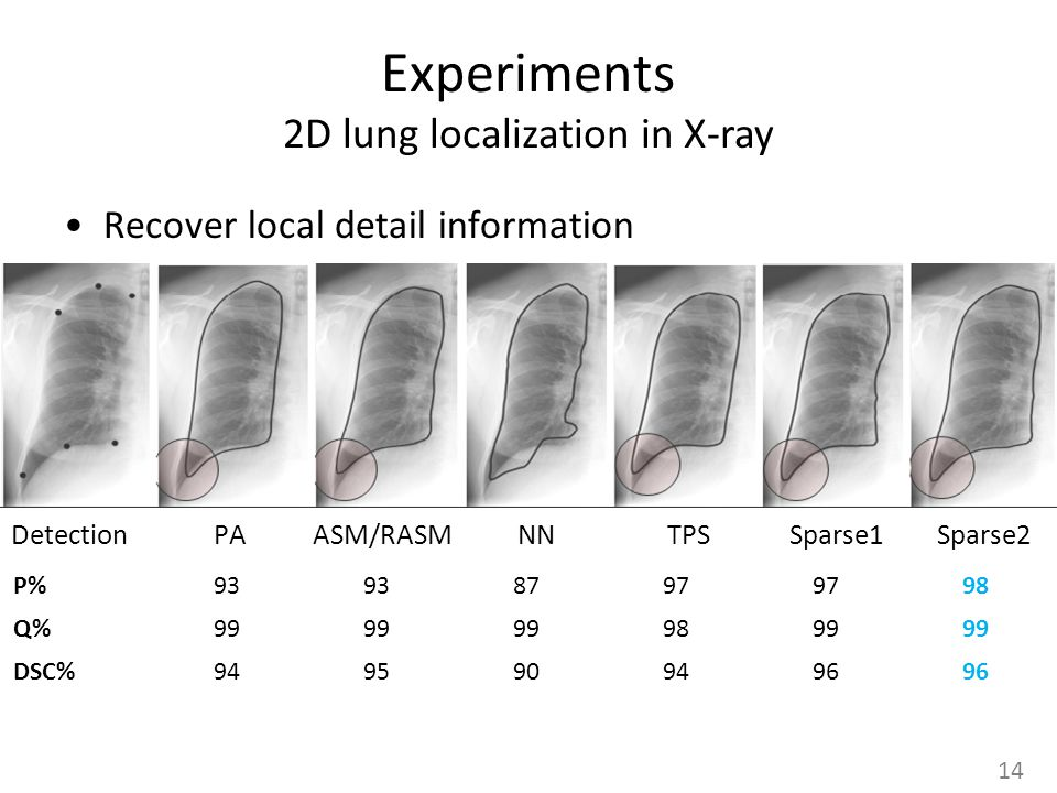 Experiments 2D lung localization in X-ray Recover local detail information Detection PA ASM/RASM NN TPS Sparse1 Sparse2 14