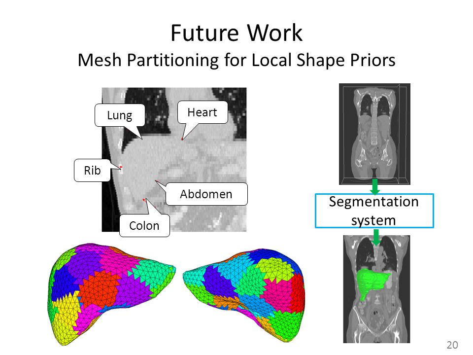 Future Work Mesh Partitioning for Local Shape Priors 20 Segmentation system Lung Heart Rib Colon Abdomen