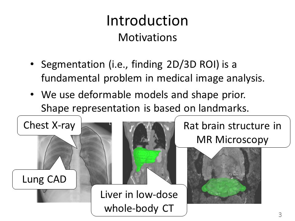 Introduction Motivations Segmentation (i.e., finding 2D/3D ROI) is a fundamental problem in medical image analysis.