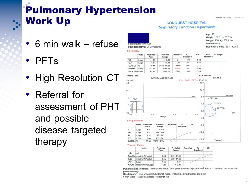 20 Pulmonary Hypertension Work Up 6 min walk – refused PFTs High Resolution CT Referral for assessment of PHT and possible disease targeted therapy
