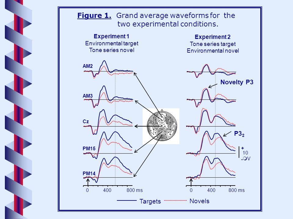 0 5 10 15 20 Target s Novels Posterior Anterior Tone series Environmental sounds EX.1EX.2 Mean Novelty P3 amplitude ( Vs ) Figure 2.