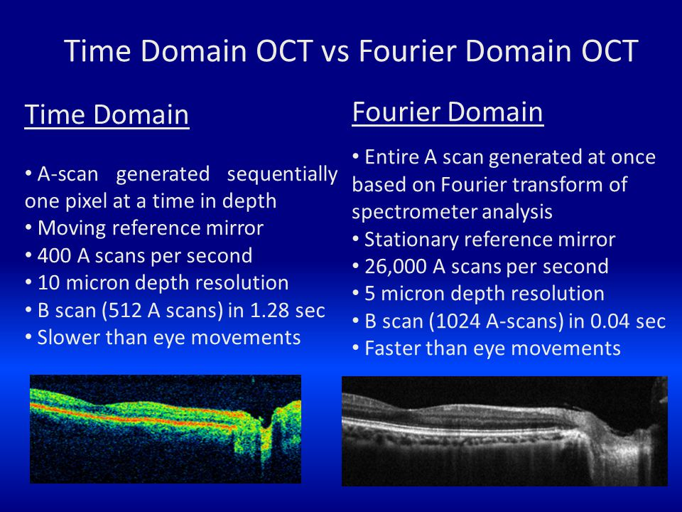 Fourier Domain Entire A scan generated at once based on Fourier transform of spectrometer analysis Stationary reference mirror 26,000 A scans per seco