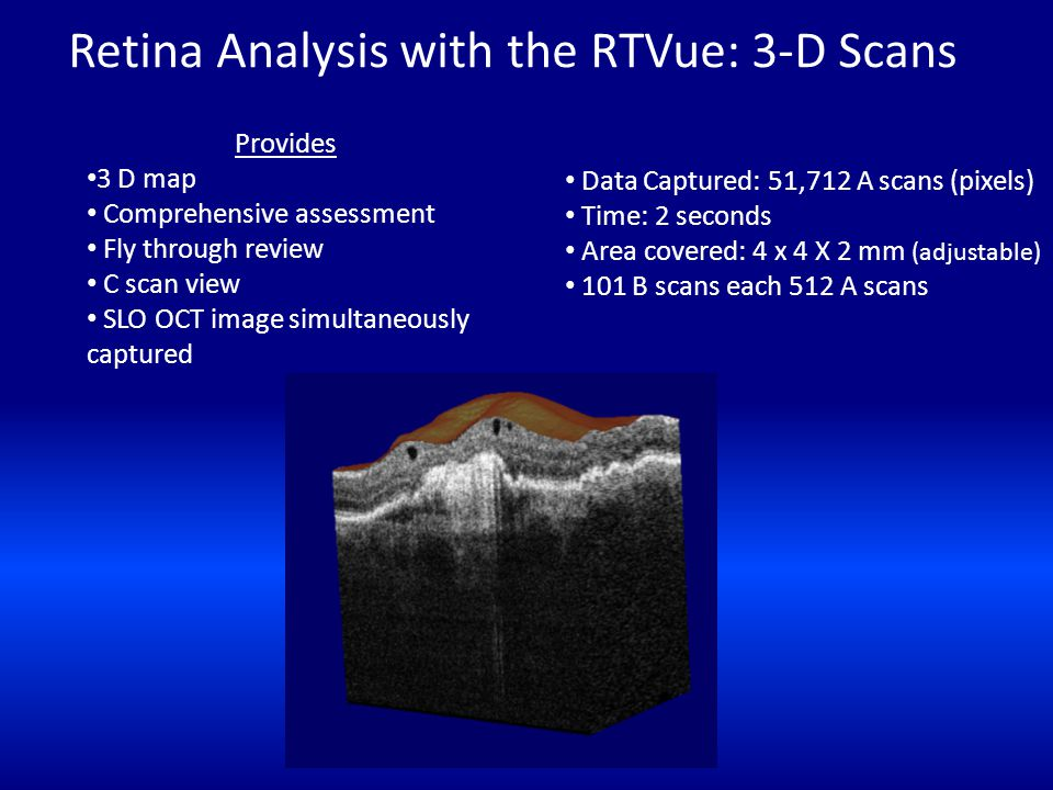 Retina Analysis with the RTVue: 3-D Scans Data Captured: 51,712 A scans (pixels) Time: 2 seconds Area covered: 4 x 4 X 2 mm (adjustable) 101 B scans e
