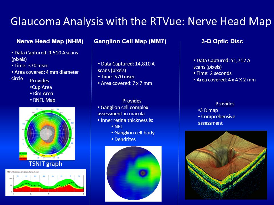 Glaucoma Analysis with the RTVue: Nerve Head Map Nerve Head Map (NHM) Ganglion Cell Map (MM7) 3-D Optic Disc Data Captured: 9,510 A scans (pixels) Tim
