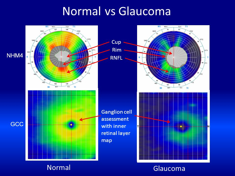 Normal vs Glaucoma Normal Glaucoma Cup Rim RNFL Ganglion cell assessment with inner retinal layer map NHM4 GCC