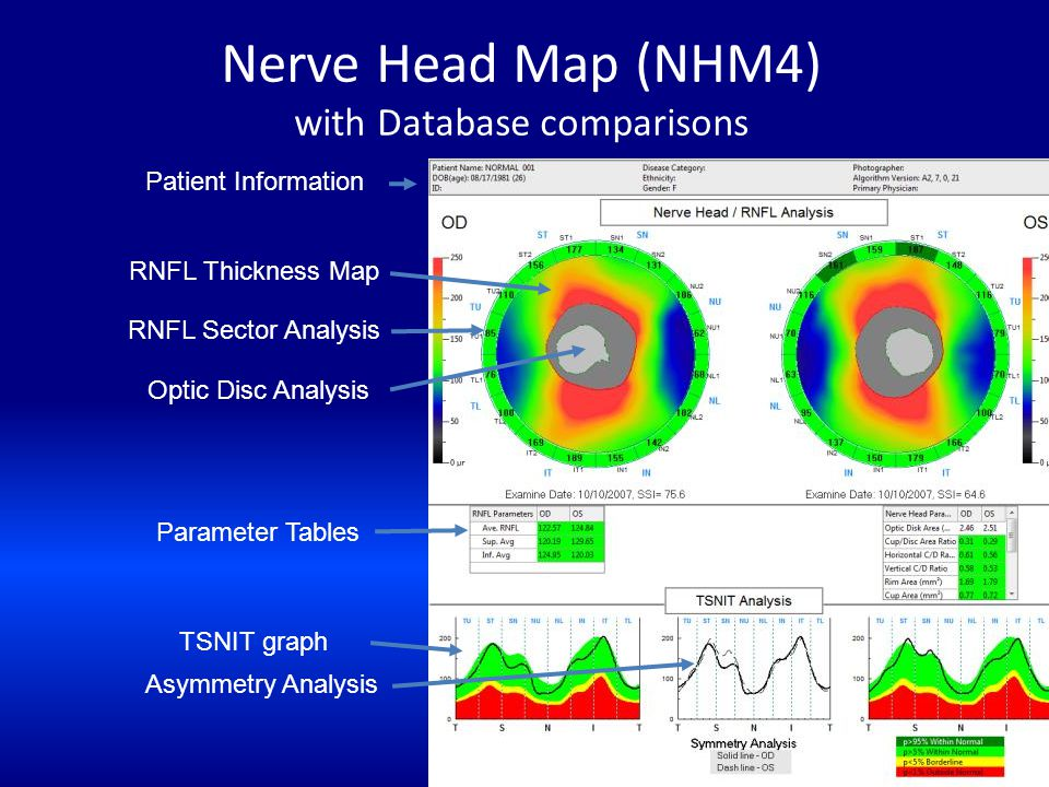 Nerve Head Map (NHM4) with Database comparisons Patient Information RNFL Thickness Map RNFL Sector Analysis Optic Disc Analysis Parameter Tables TSNIT