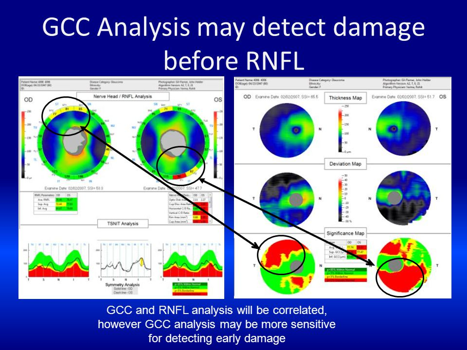 GCC Analysis may detect damage before RNFL GCC and RNFL analysis will be correlated, however GCC analysis may be more sensitive for detecting early da