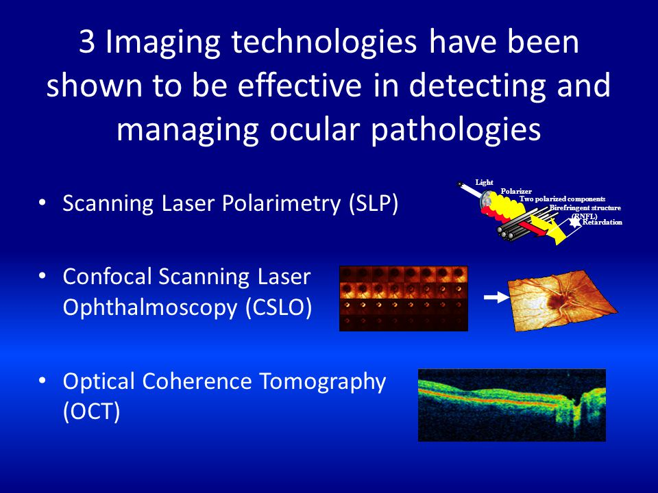 3 Imaging technologies have been shown to be effective in detecting and managing ocular pathologies Scanning Laser Polarimetry (SLP) Confocal Scanning