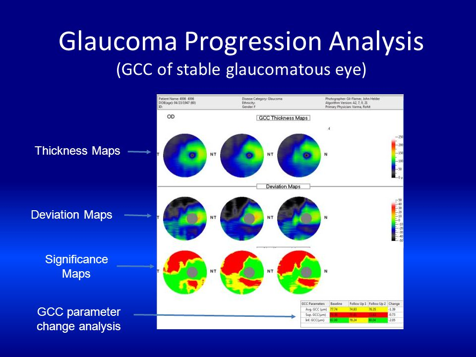 Glaucoma Progression Analysis (GCC of stable glaucomatous eye) Thickness Maps Deviation Maps GCC parameter change analysis Significance Maps