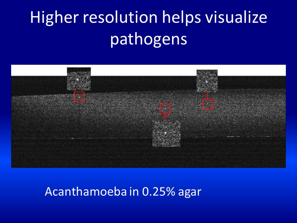 Higher resolution helps visualize pathogens Acanthamoeba in 0.25% agar