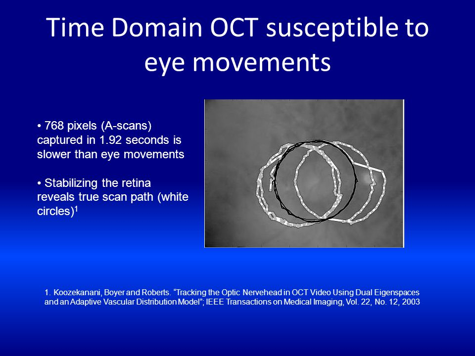 Time Domain OCT susceptible to eye movements 1. Koozekanani, Boyer and Roberts. Tracking the Optic Nervehead in OCT Video Using Dual Eigenspaces and a