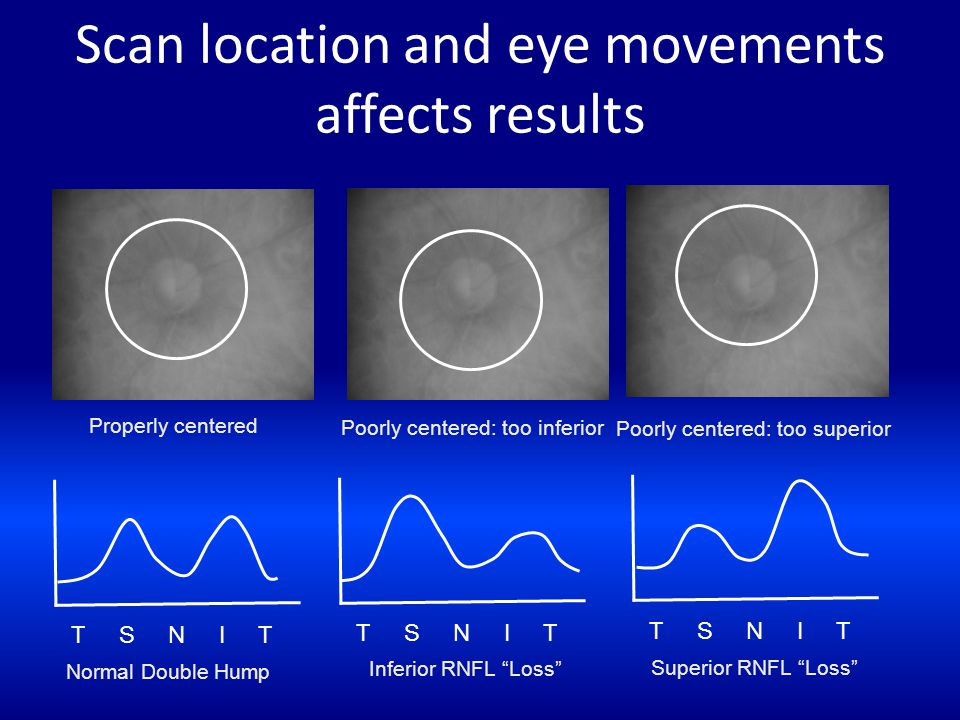 Scan location and eye movements affects results T S N I T Properly centered Normal Double Hump Poorly centered: too inferior Poorly centered: too supe