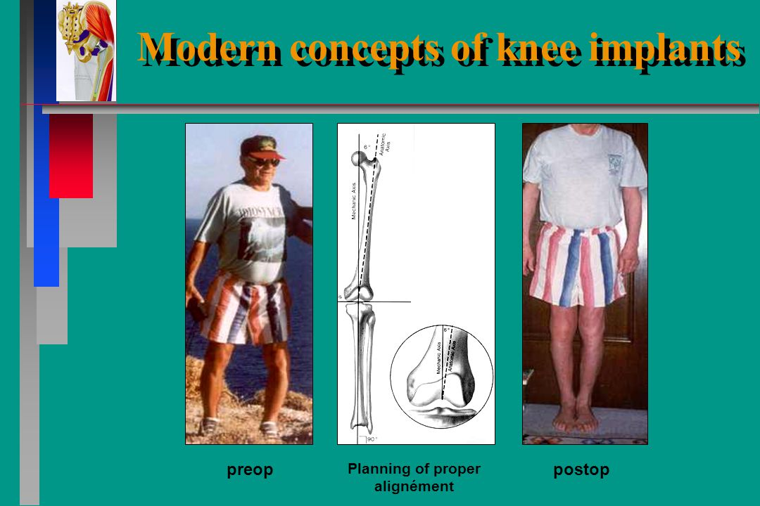 Modern concepts of knee implants Restore perfect alignement valgusvarus Alignement deficiencies have to be corrected painstakingly to avoid peak-pressure locally