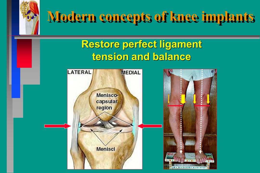 Modern concepts of knee implants preoppostop Planning of proper alignément