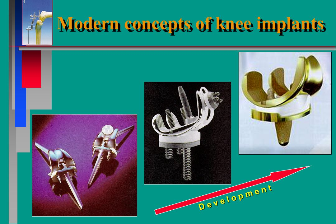 Modern concepts of knee implants stabel fixation of components to bone cement Press fit screw fixation