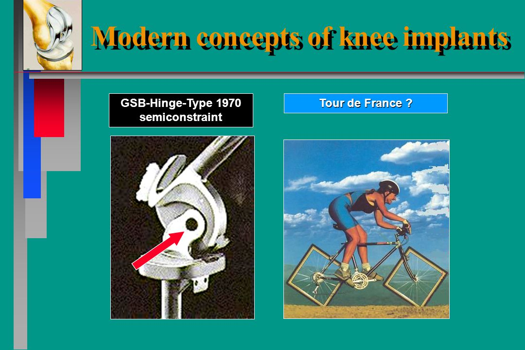 Modern concepts of knee implants Stoneage of knee-implants