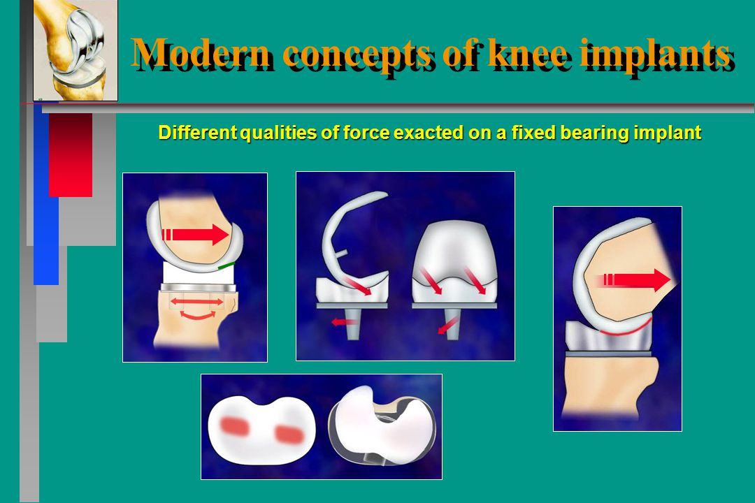 Modern concepts of knee implants Large contact area reduces contact stress