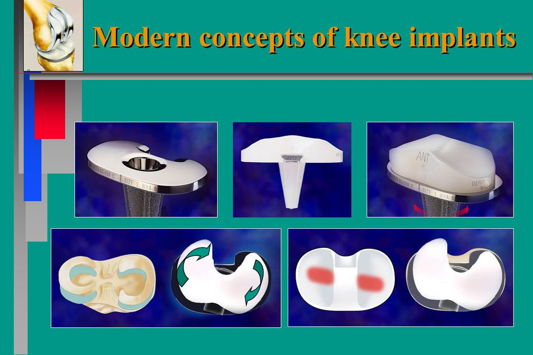 Modern concepts of knee implants Mobile bearing prevents sheering forces