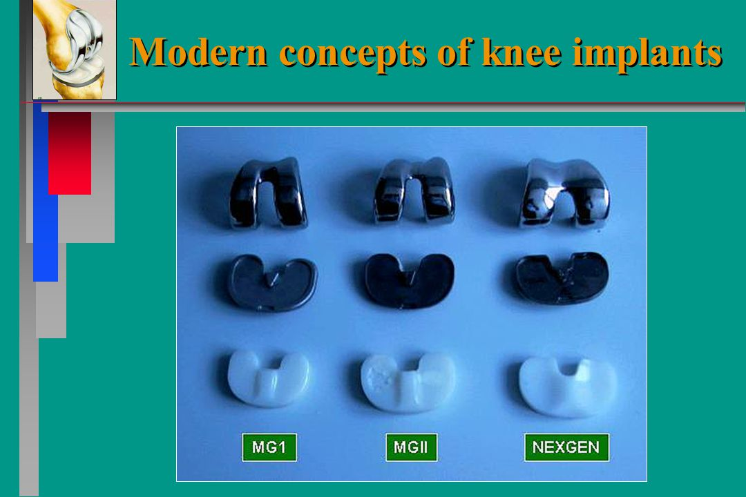 Modern concepts of knee implants Unicondylar implants Unicondylar implants
