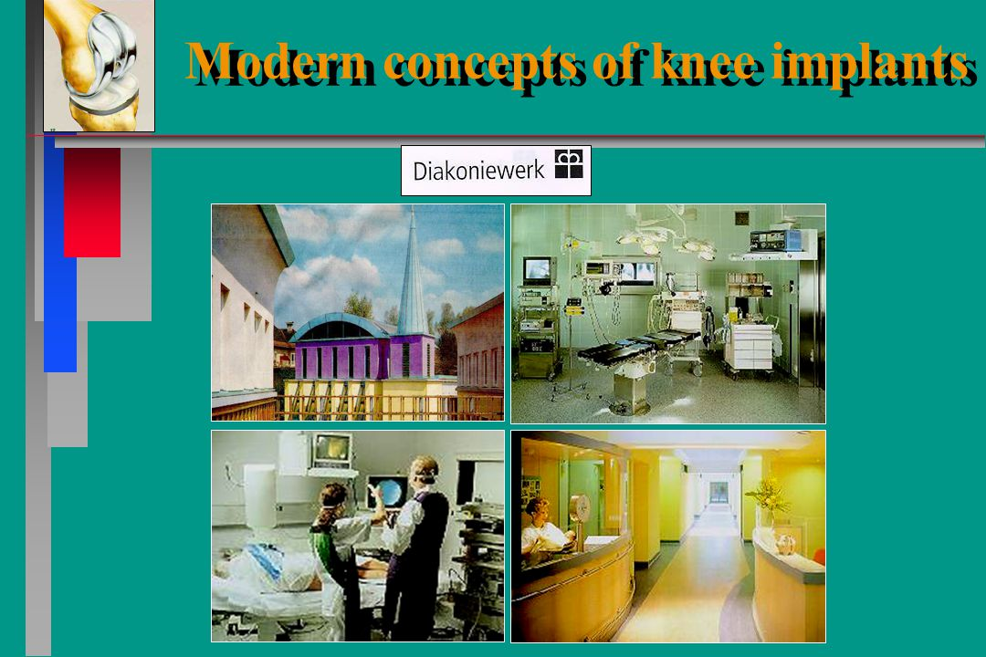 Modern concepts of knee implants Modern concepts of knee implants Dr.