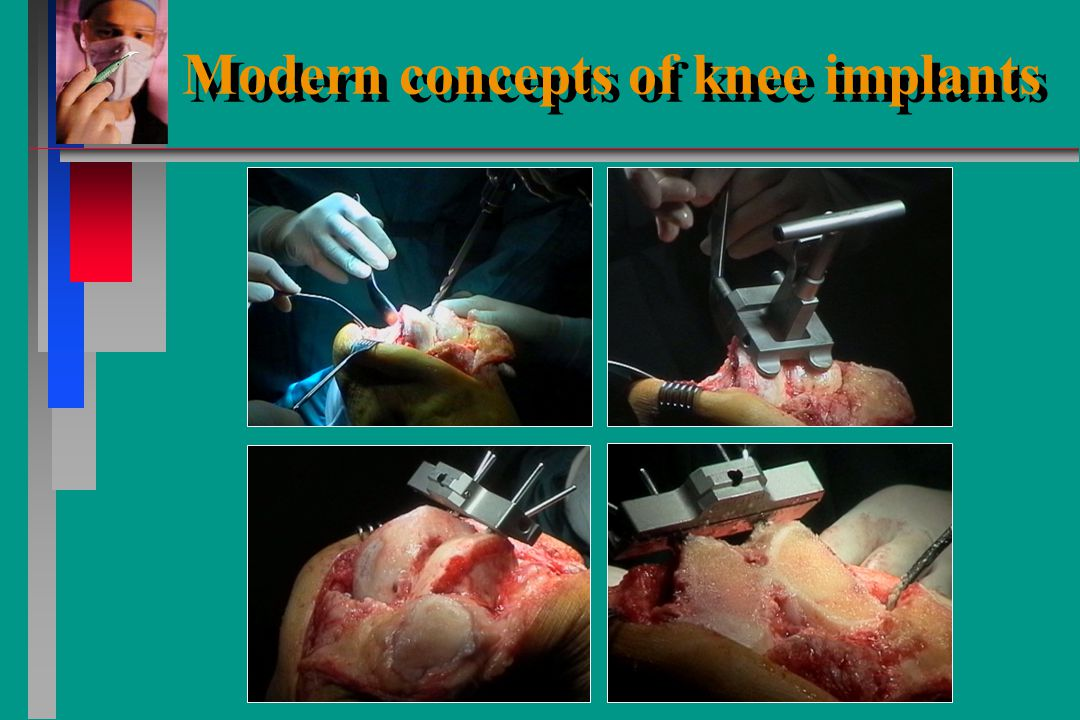 Modern concepts of knee implants Modern concepts of knee implants