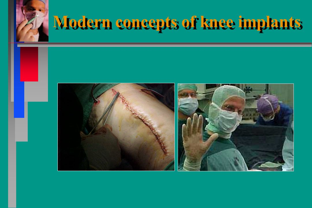 Modern concepts of knee implants
