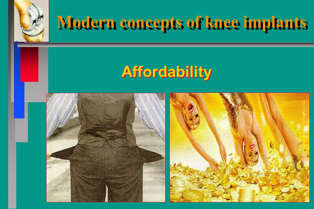 Durability Modern concepts of knee implants Modern concepts of knee implants