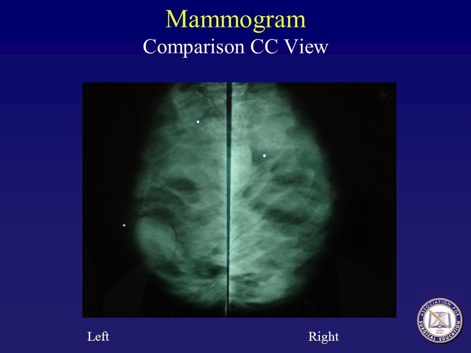 Mammogram Comparison CC View Left Right