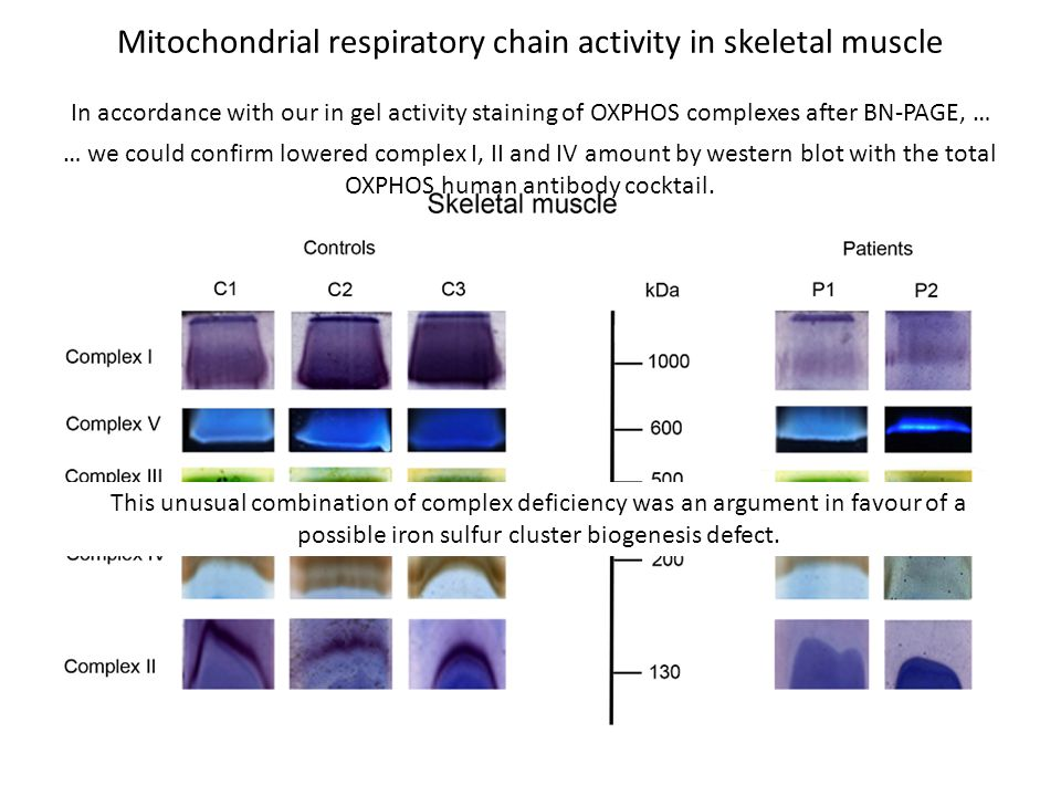 Mitochondrial respiratory chain activity in skeletal muscle In accordance with our in gel activity staining of OXPHOS complexes after BN-PAGE, … … we