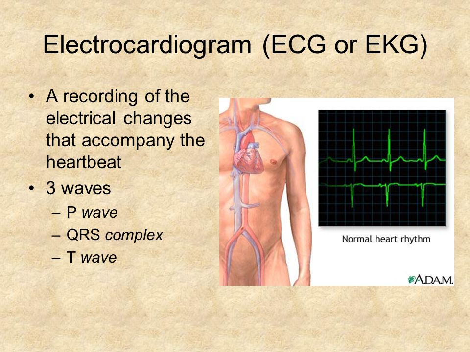 Electrocardiogram (ECG or EKG) A recording of the electrical changes that accompany the heartbeat 3 waves –P wave –QRS complex –T wave