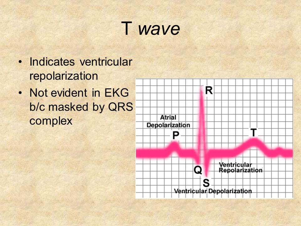 T wave Indicates ventricular repolarization Not evident in EKG b/c masked by QRS complex