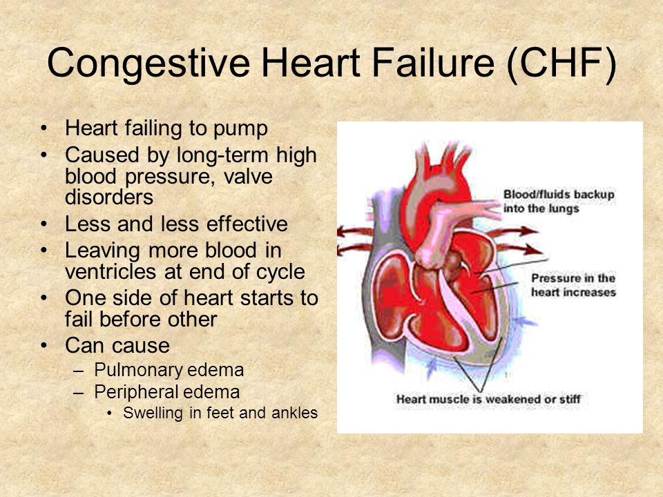 Congestive Heart Failure (CHF) Heart failing to pump Caused by long-term high blood pressure, valve disorders Less and less effective Leaving more blood in ventricles at end of cycle One side of heart starts to fail before other Can cause –Pulmonary edema –Peripheral edema Swelling in feet and ankles