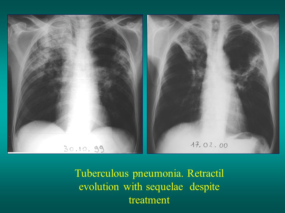 Tuberculous pneumonia. Retractil evolution with sequelae despite treatment