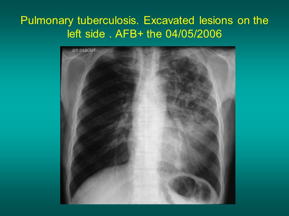 Pulmonary tuberculosis. Excavated lesions on the left side. AFB+ the 04/05/2006