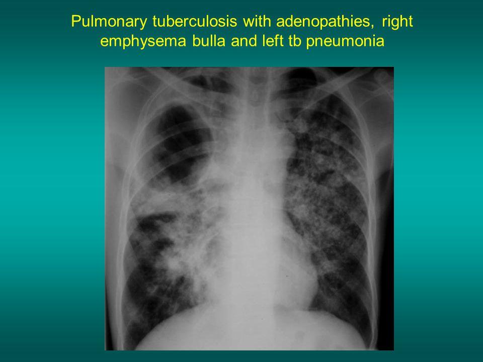Pulmonary tuberculosis with adenopathies, right emphysema bulla and left tb pneumonia