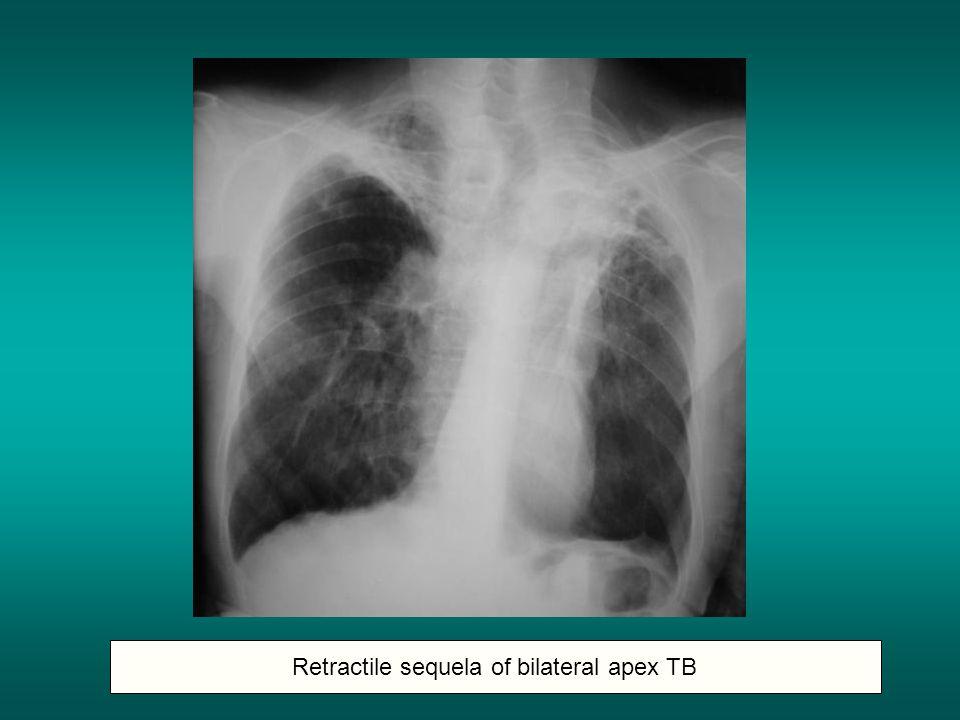 Retractile sequela of bilateral apex TB