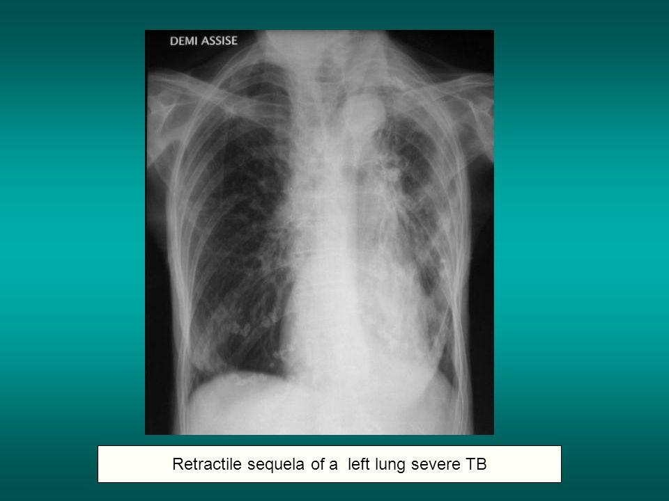 Retractile sequela of a left lung severe TB