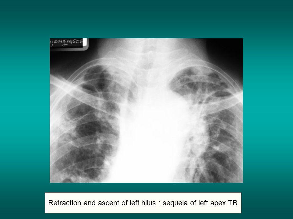Retraction and ascent of left hilus : sequela of left apex TB