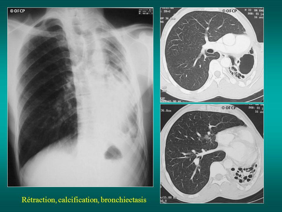 Rétraction, calcification, bronchiectasis