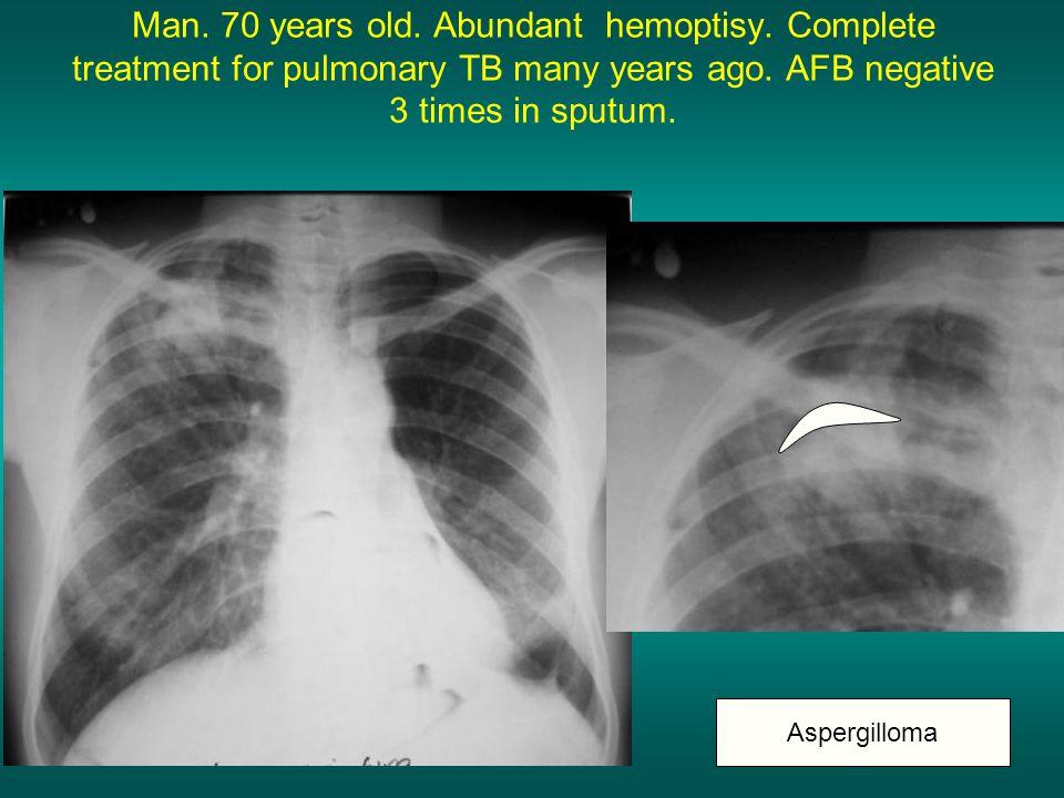 Man. 70 years old. Abundant hemoptisy. Complete treatment for pulmonary TB many years ago. AFB negative 3 times in sputum. Aspergilloma