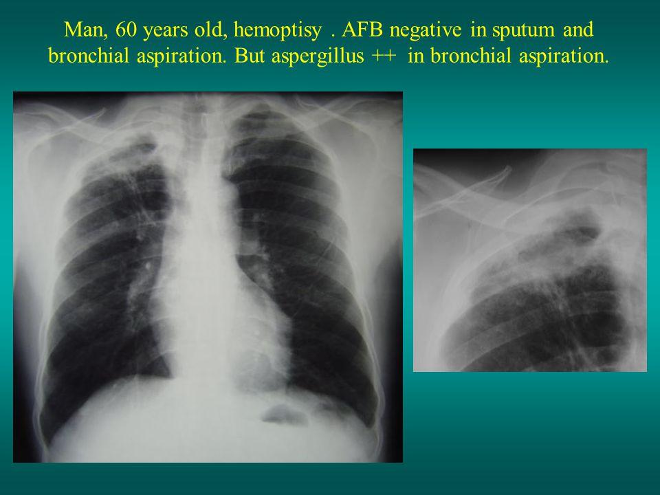 Man, 60 years old, hemoptisy. AFB negative in sputum and bronchial aspiration. But aspergillus ++ in bronchial aspiration.